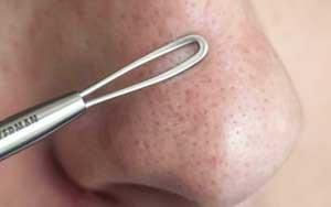 Как убрать черные точки на носу - Рецепты в домашних 33