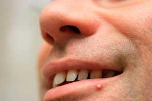 Как вылечить простуду на губе?