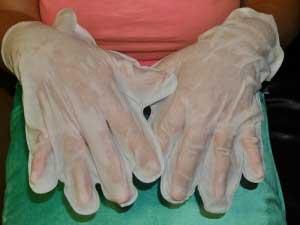 На руках трескается кожа