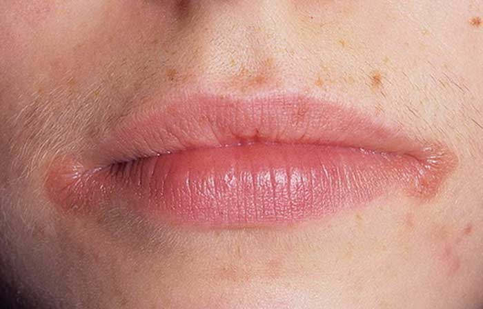 Как лечить заеды на губах народными средствами