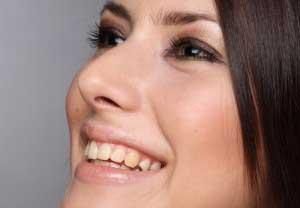 Заеда в уголках губ