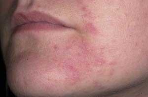 Воспаленные участки кожи