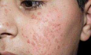 Папилломы на лице